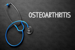 Elder Care in Comstock Park MI: Symptoms of Osteoarthritis