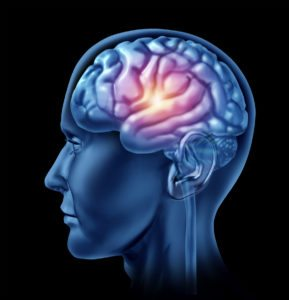 Elder Care in Grand Rapids MI: Traumatic Brain Injuries